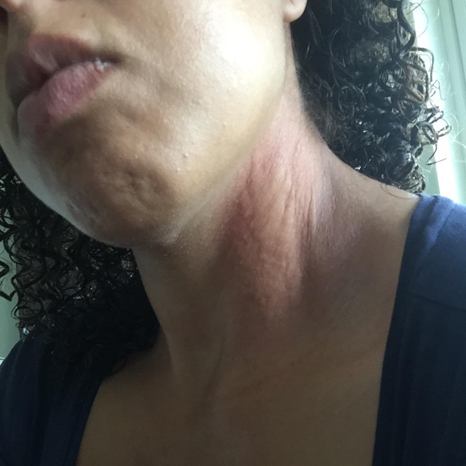 utslag halsen kliar